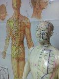 Acupuncture in Parker Colorado